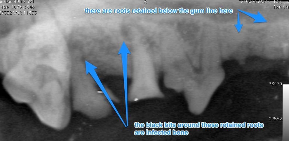 dental xray with retained roots under gums and also infection in the exposed roots that have been retained